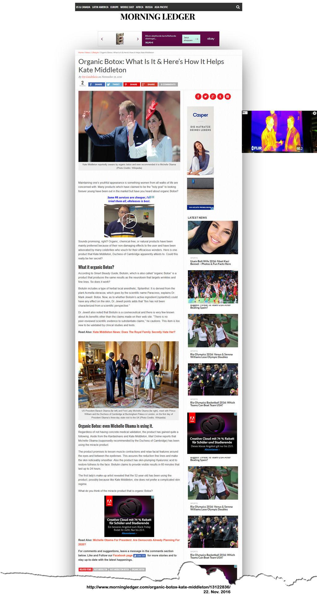Kate Middleton Botox secreat